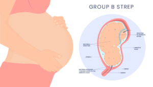 Read more about the article Group B Strep: Its Causes, Symptoms, Treatments